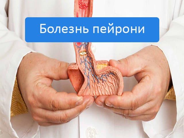 Пейрони болезнь у мужчин причины и лечение