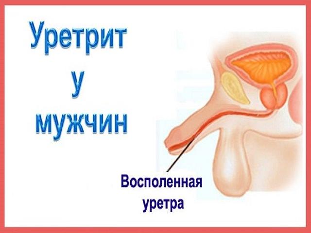 Среди распространенных причин болей в уретре - это его воспаление