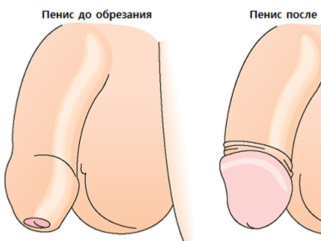 Обрезание крайней плоти плюсы и минусы