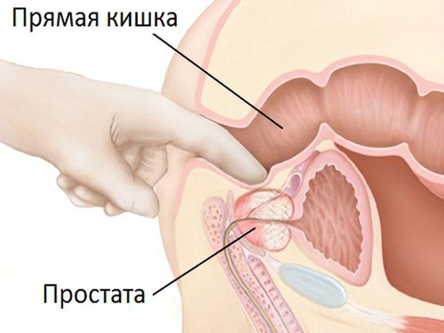 Как делать массаж простатиты народное лечение простатита и аденомы