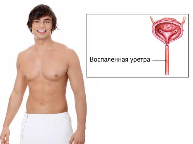 Бужирование уретры у мужчин — ход процедуры, последствия