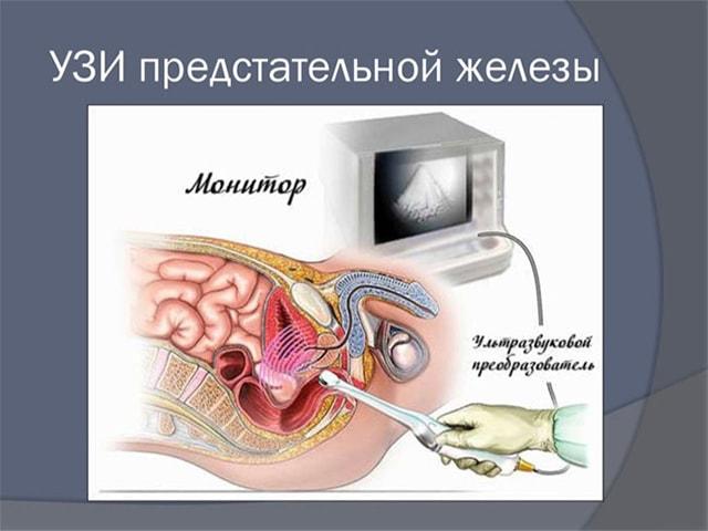 Узи предстательной железы как проводится фото